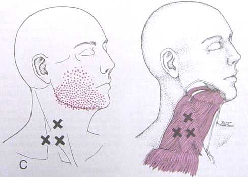 Trigger points on the neck