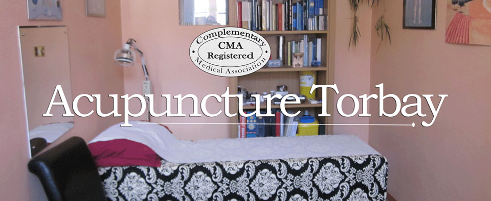 Acupuncture in Torbay Banner
