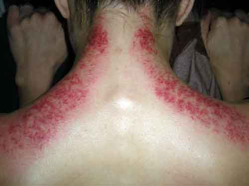 Showing the red marks from Gua Sha